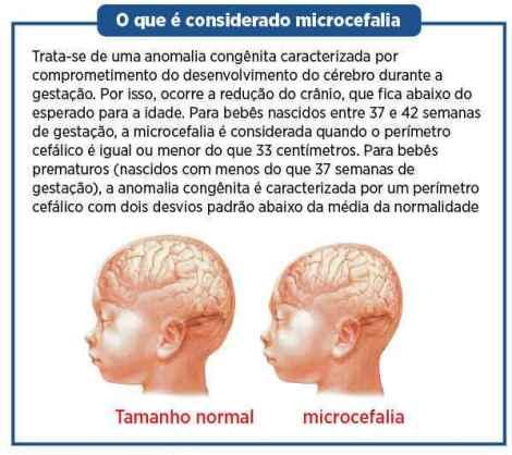 microcefalia-arte1(1)